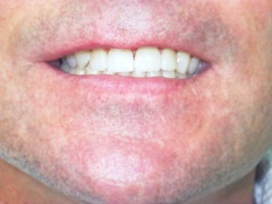 Dental Veneer case study